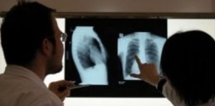 Turda și Câmpia Turzii bat mediul rural la tuberculoză